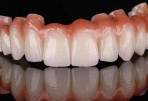 Dental Look